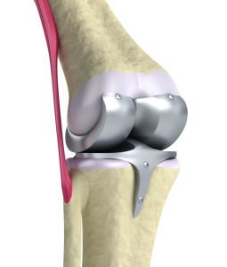 Follow The Knee Replacement Precautions New Health Advisor