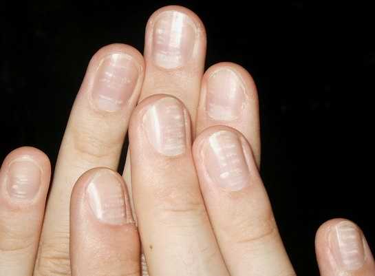 What could no moons on fingernails mean new health advisor this is one common nail problem besides no moons on fingernails in such a scenario the lines run parallel to the base of the fingernails sciox Choice Image