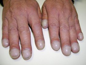 What could no moons on fingernails mean new health advisor nail clubbing sciox Choice Image