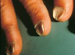 What could no moons on fingernails mean new health advisor this is another condition besides no moons on fingernails when the fingernails look scooped out or curve inwards then it could indicate iron deficiency sciox Choice Image