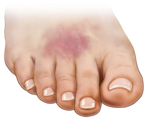 Popped Blood Vessel In Foot Causes And Treatment New