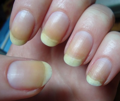 Nail Polish In The Same Way That Sink Absorbs Oxides From Water Leaving Your Nails To Remain Stained Even After You Take Off