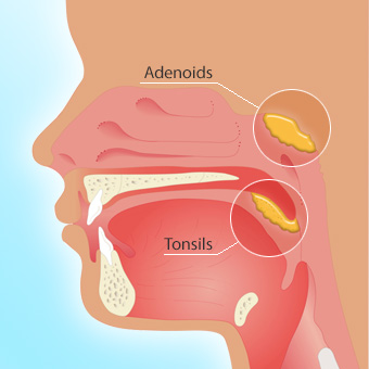 3 Common Tonsillectomy Complications to Watch Out For ...