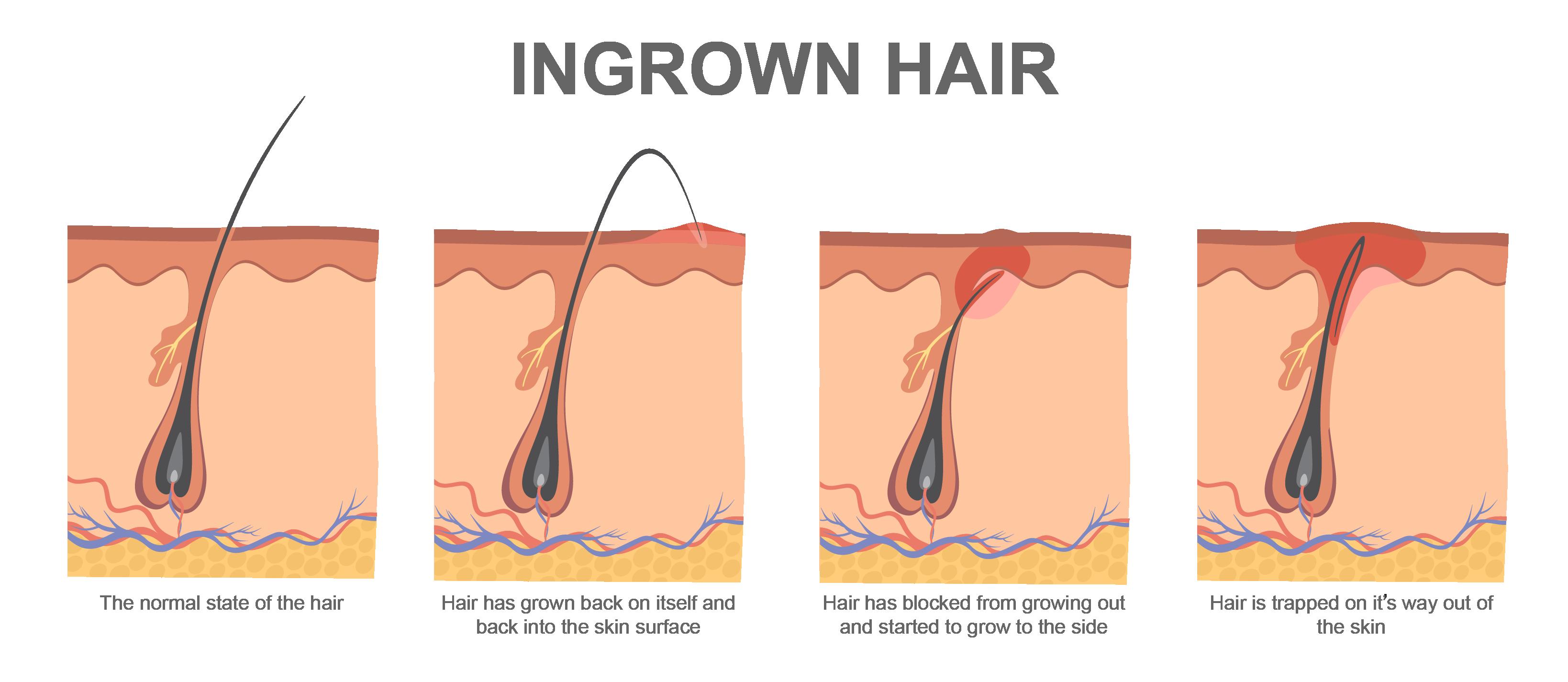 Simple Ingrown Hair In Chest It Looks Like A Simple