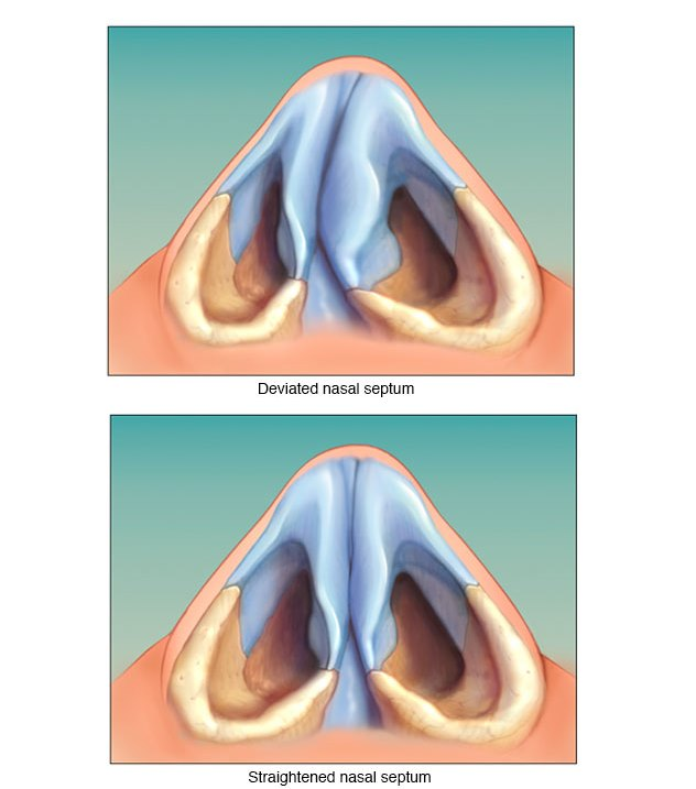 Home Remedies And Medicines For Deviated Septum No