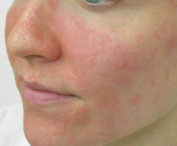 Facial Eczema Triggers And Dealing Methods New Health