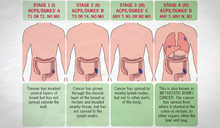 last-stage colon cancer: symptom, treatment and outlook | new, Human Body