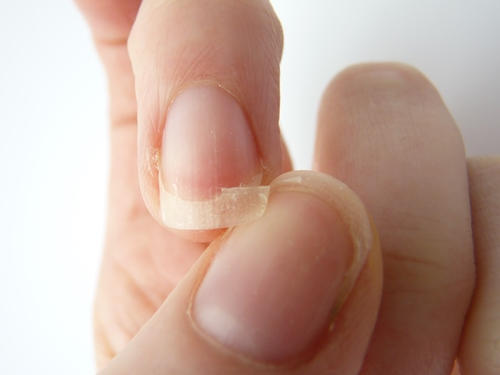 What Vitamin Deficiency Causes Brittle Nails? | New Health Advisor