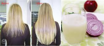 how to use onion seed oil for hair growth