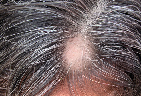 Top 12 Remedies To Stop Hair Loss New Health Advisor
