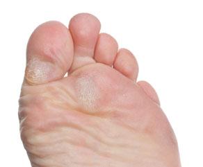 hardened skin under foot