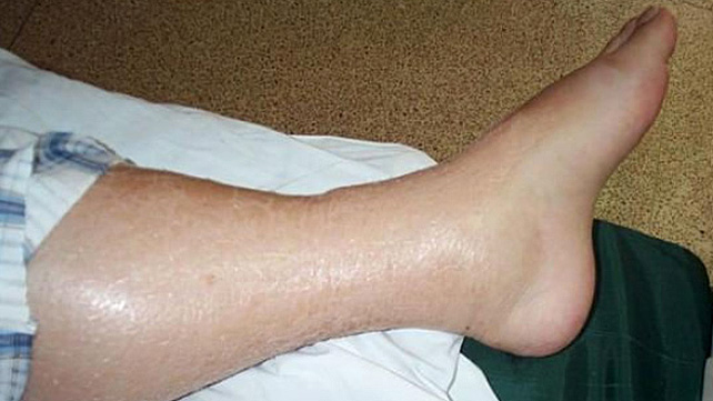 What Causes Swollen and Hot Leg?