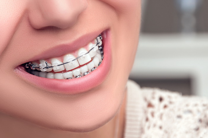 Tips To Help You Get Braces Off Quickly New Health Advisor