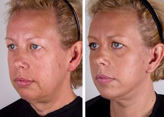 facial weight loosing skin Saggy after