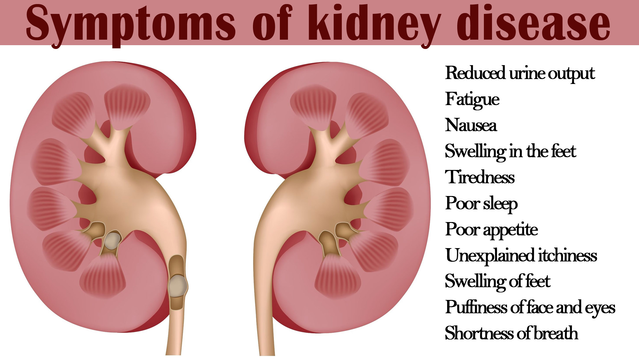 kidney disease Chronic kidney disease (ckd) is a type of kidney disease in which there is  gradual loss of kidney function over a period of months or years early on there  are.